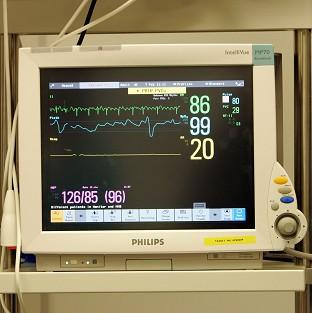 ECGs can detect abnormal heart rhythms, damage caused by heart attacks or an enlarged heart.