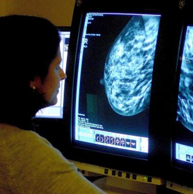This Is Lancashire: Professor Mark Lawler said a high proportion of older women with a certain form of breast cancer receive less chemotherapy than their younger counterparts