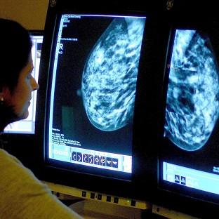 A consultant analysing a mammogram for signs of cancer